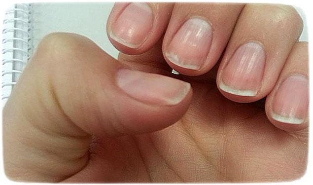 сильно слоятся ногти на руках что делать