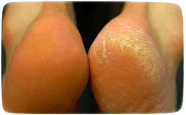 трещины на пятках причины лечение мази
